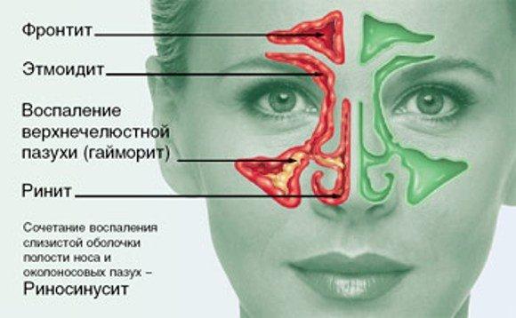 Заболевания носа в картинках